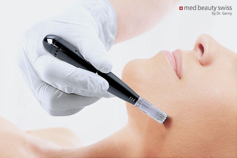 MedBeauty Needling Pen Anwendung Partner